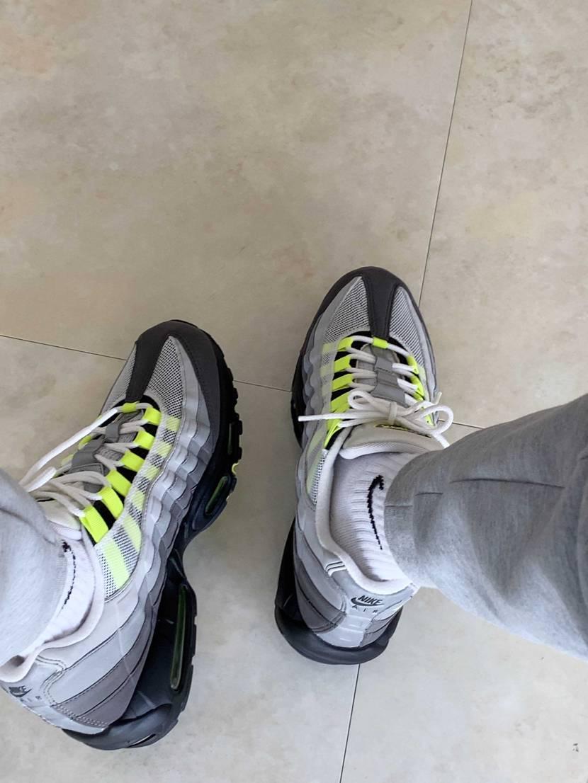 病院の入退時に履いてたのもイエローグラデ✨🤣 最後の最後にナースさんに靴つっこ